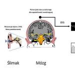 MASTER II – ocena poziomu słyszenia metodą ASSRs